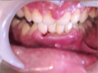Gum / Periodontal Problems