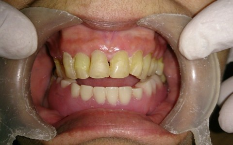 laserdentistry_after